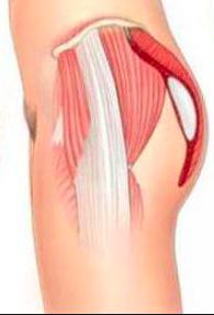 dessin protheses de fesse