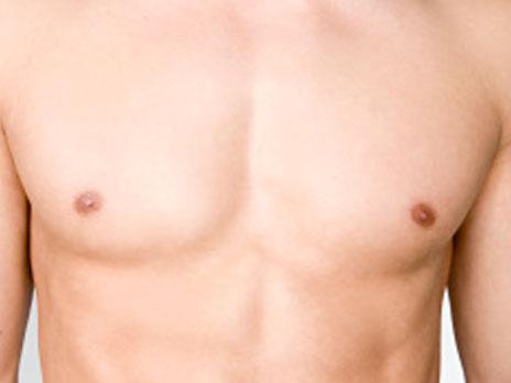 docteur adjadj chirurgie plastique médecine esthétique seins homme gynécomastie torse masculin