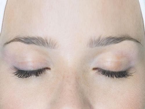 docteur adjadj chirurgie plastique paupières blépharoplastie visage esthétique rajeunissement regard botox toxine botulique yeux visage
