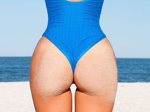 int-protheses-fesses-2